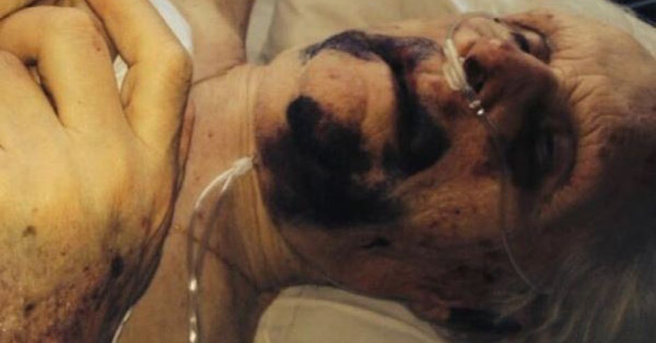 Holocaust survivors brutally beaten during sickening antisemitic robbery
