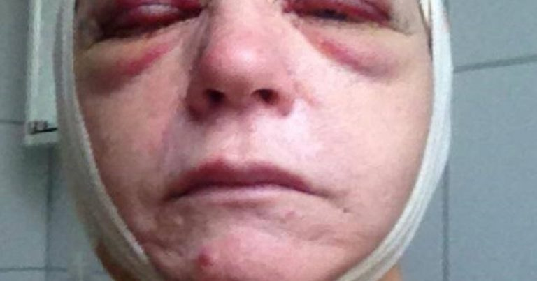 Sweden: Jewish woman beaten, hospitalised by female Muslim gang