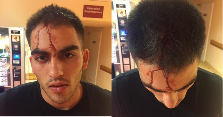 Israeli Jew beaten by Egyptian in Lithuanian bar, left with broken nose and requiring stitches